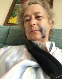 abuela-golpeada